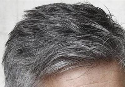 درمان مو سفید با پوست سیب زمینی