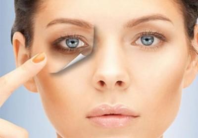 چه عواملیباعث تیرگی اطراف چشم شما میشود؟