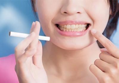 داشتن دندان های سالم در دوران مصرف سیگار